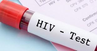 VIH SIDA 2