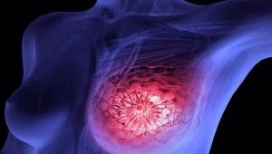 Cáncer de mama y bacterias